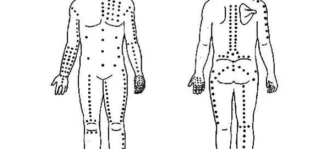 Акупунктурные точки при бессоннице: массаж как лучшее средство