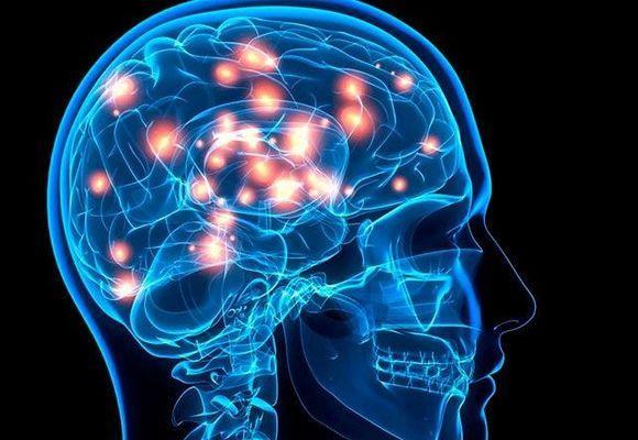 схема черепа со вспышками