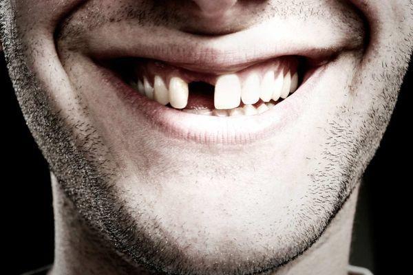 мужчина без зуба