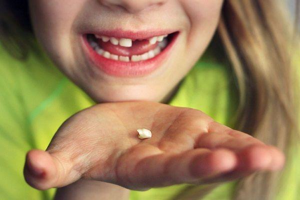 выпавший зуб у ребенка